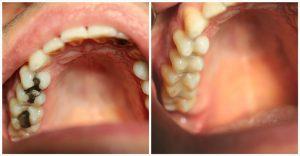 Aesthetische-Zahnheilkunde01