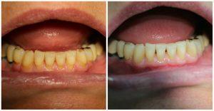 Aesthetische-Zahnheilkunde02
