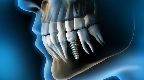 Implantate, die Lösung bei Zahnlücken